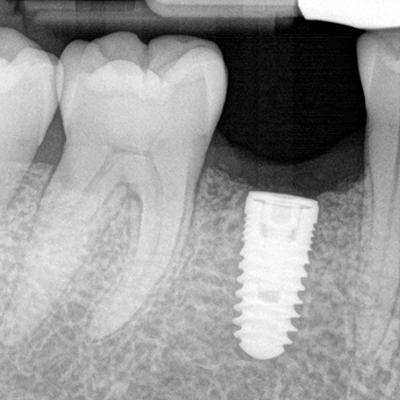 implants pt2 after
